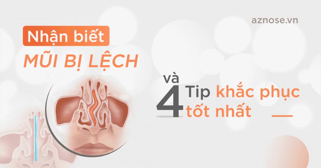Nhận biết mũi bị lệch 4 tip khắc phục tốt nhất