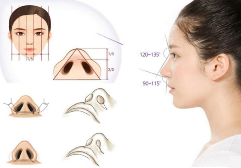 Phương pháp cắt cánh mũi giúp dáng mũi thanh tú và đẹp mắt hơn.