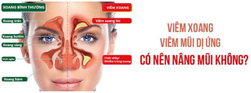 Tình trạng mũi khi bị viêm xoang.