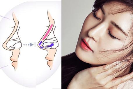 Kỹ thuật nâng mũi chỉ nâng cao sống mũi, không can thiệp đến đường hô hấp và các xoang.