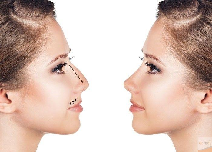 Hình dáng mũi gỗ khiến tổng thể gương mặt mất cân đối hơn.
