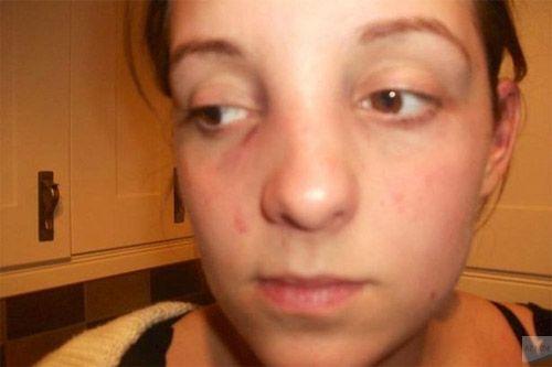 sống mũi bị gãy do tai nạn