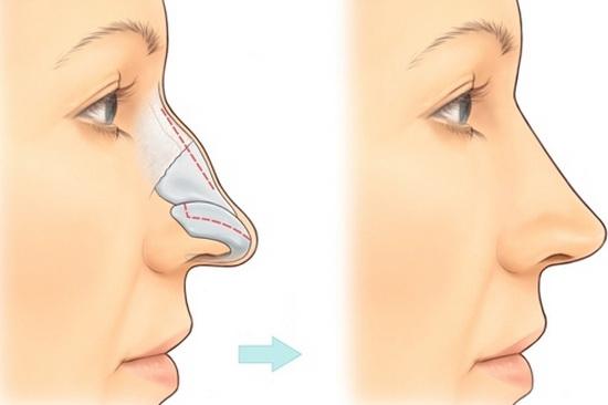 Phương pháp nâng mũi có thể khắc phục tình trạng mũi gãy.