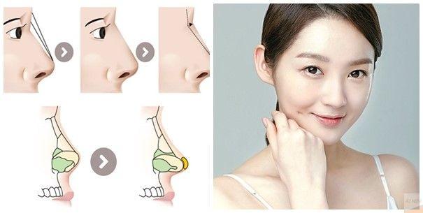 Phương pháp nâng mũi sụn tự thân
