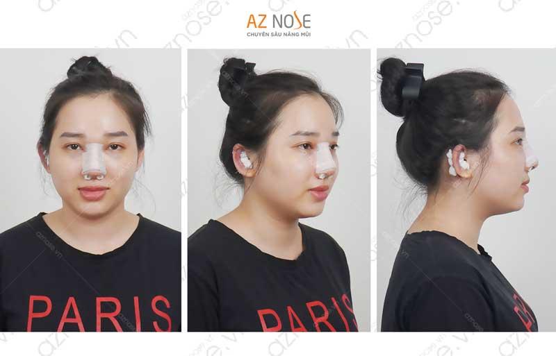 Sau khi phẫu thuật bạn sẽ được nẹp cố định dáng mũi.