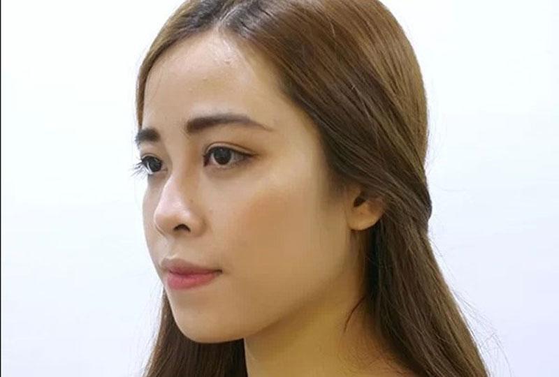 Mũi gãy đến từ nhiều nguyên nhân khác nhau như bẩm sinh hay sửa mũi hỏng,...