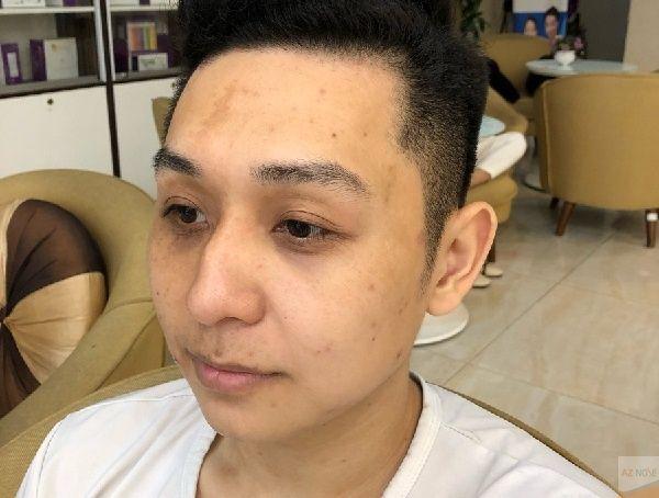 Tình trạng mũi gãy gây mất tính thẩm mỹ cho tổng thể gương mặt.