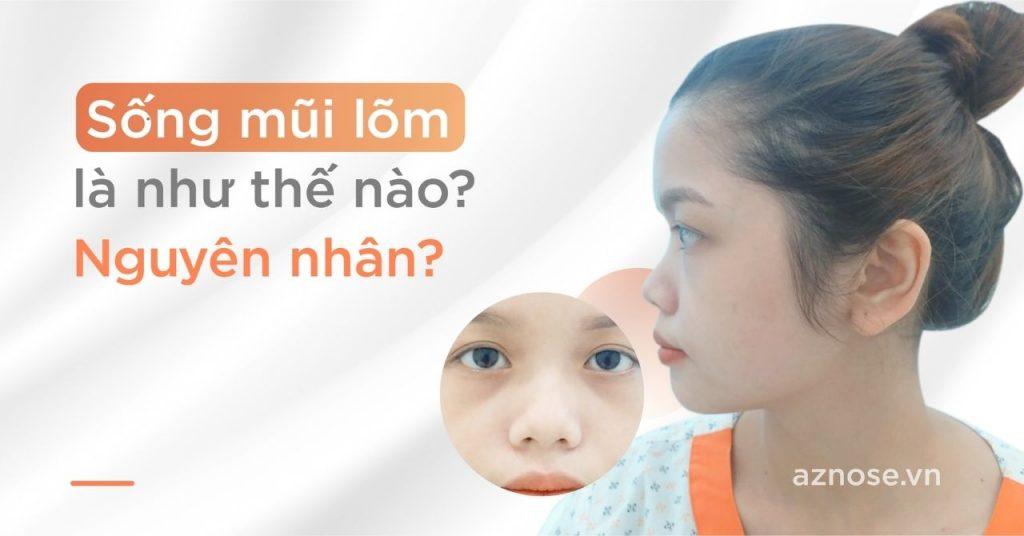 Sống mũi lõm là như thế nào? Nguyên nhân của tình trạng sống mũi lõm?