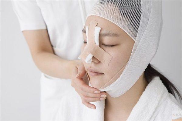 Nâng mũi khắc phục triệt để mọi khuyết điểm như dáng mũi thấp, cánh mũi to.