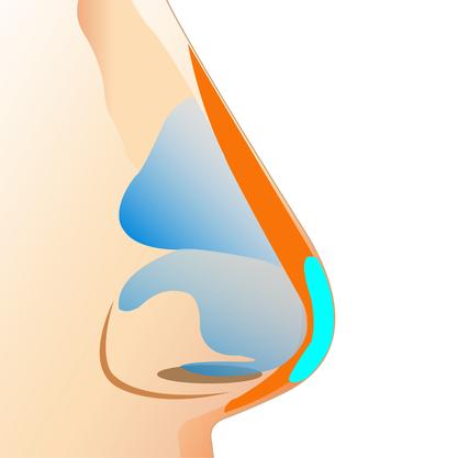 Cấu trúc chi tiết bên trong khi nâng mũi bọc sụn megaderm