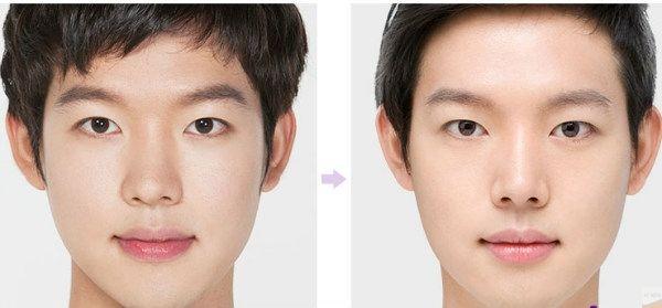 Nâng mũi thấp cho nam để khôi phục vẻ điển trai.