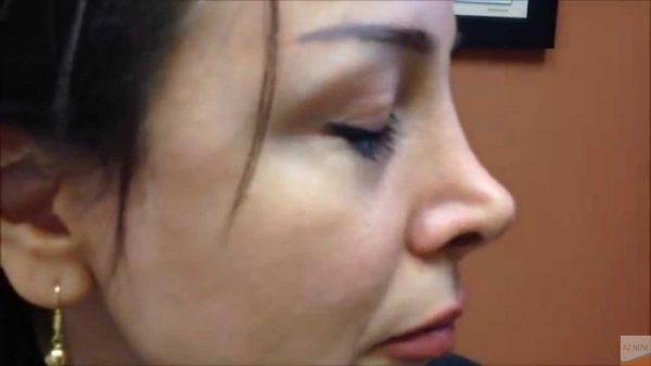 Nguyên nhân của mũi lõm có thể vì bẩm sinh, tai nạn hay do bị hỏng sau nâng.