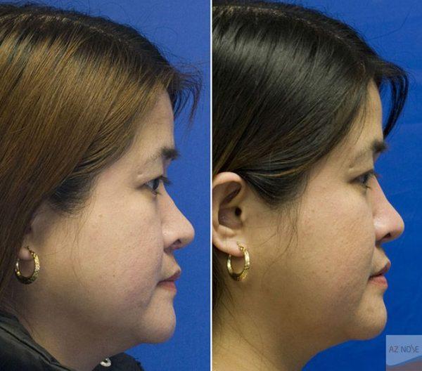 Mũi lõm khiến gương mặt mất cân đối.