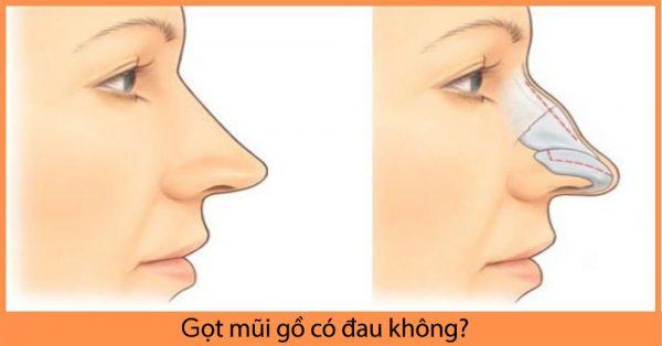 Gọt mũi gồ có đau không