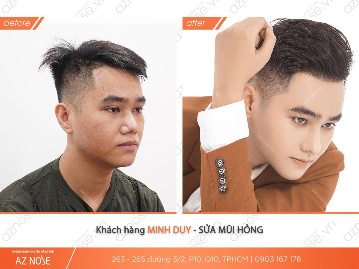 Khách hàng Minh Duy - sửa mũi hỏng