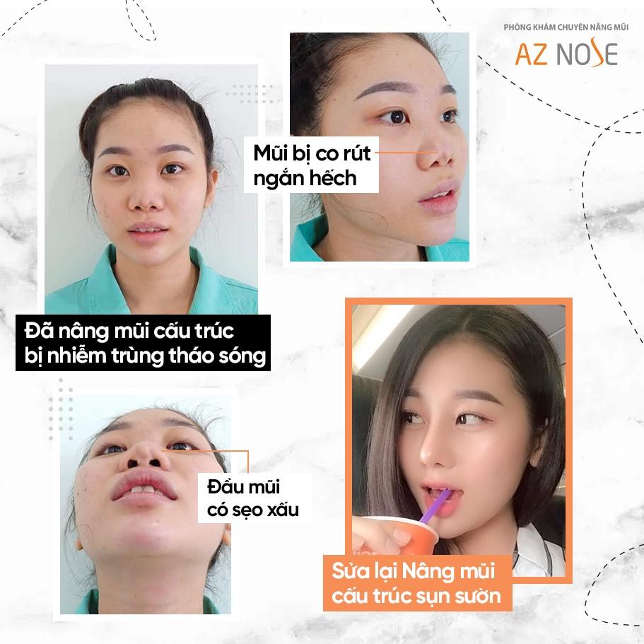 Khách hàng sau khi điều trị mũi co rút ngắn hếch