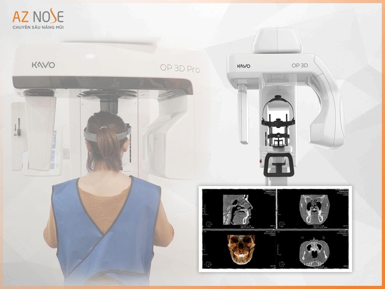 Công nghệ CT 3D Pro được phòng khám chuyên sâu nâng mũi AZ NOSE ứng dụng khảo sát tình trạng, cấu trúc mũi trước khi phẫu thuật