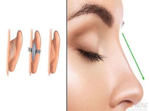 Bác sĩ sẽ rạch đường phía sau tai để lấy phần sụn, đảm bảo tính thẩm mỹ sau khi phẫu thuật