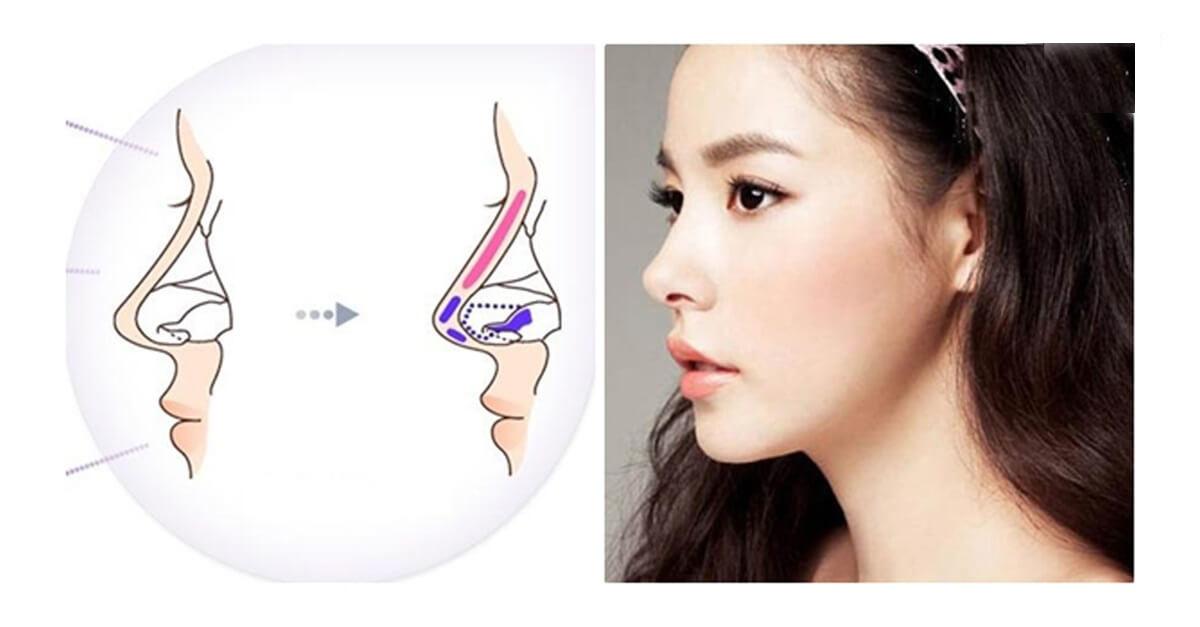 Sụn bên trong mũi cần thời gian ổn định và thích nghi.