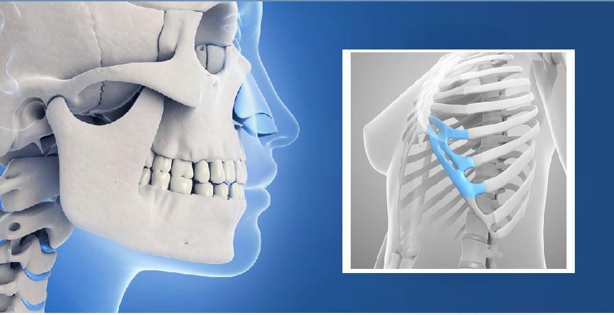 Sụn được lấy từ vị trí xương sườn số 6 hoặc số 7