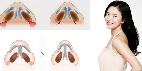 Cách thức phẫu thuật cắt cánh mũi