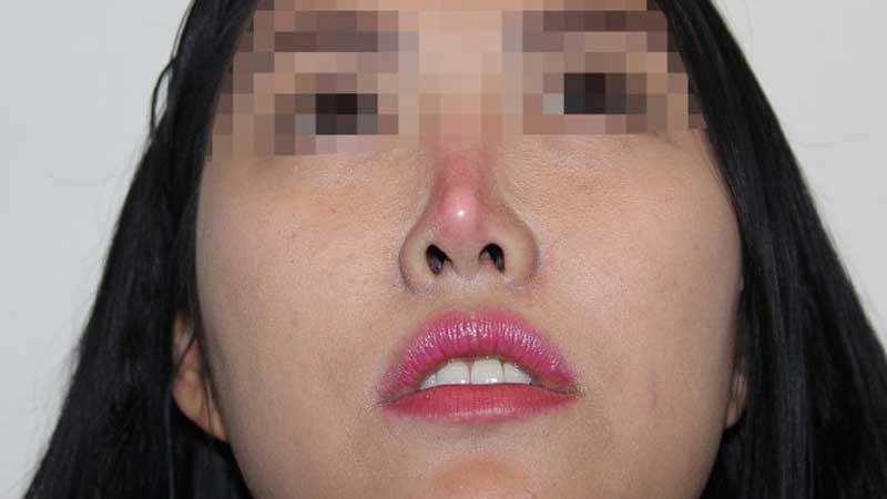 Nâng mũi nhân tạo dễ dẫn đến bóng đỏ đầu mũi