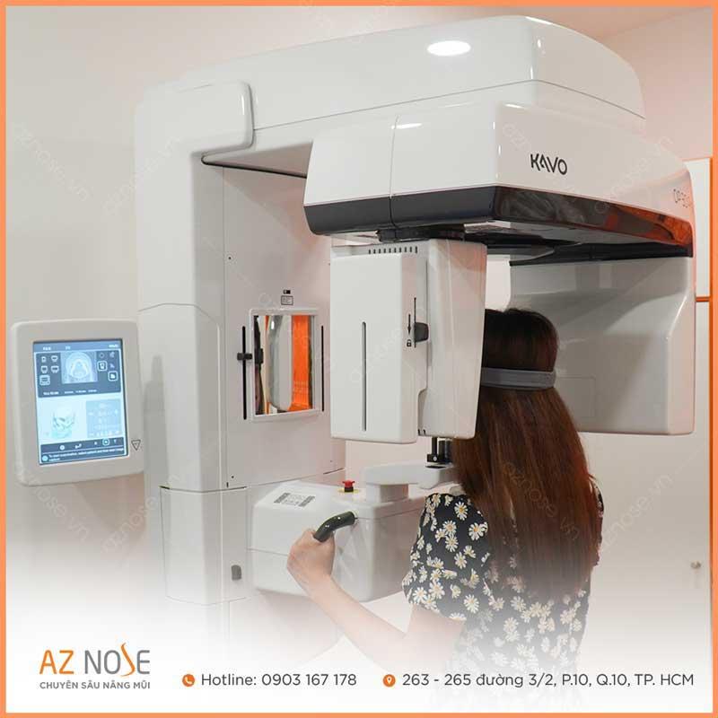 Chụp CT 3D để kiểm tra tình trạng và cấu trúc mũi hiện tại, cũng như giúp phát hiện phương pháp nâng mũi cũ