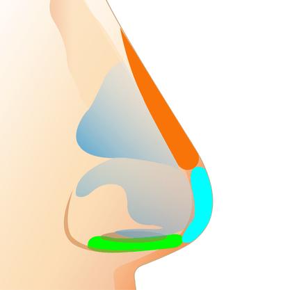 Sụn tự thân có thể nâng cao trụ và kéo dài đầu mũi