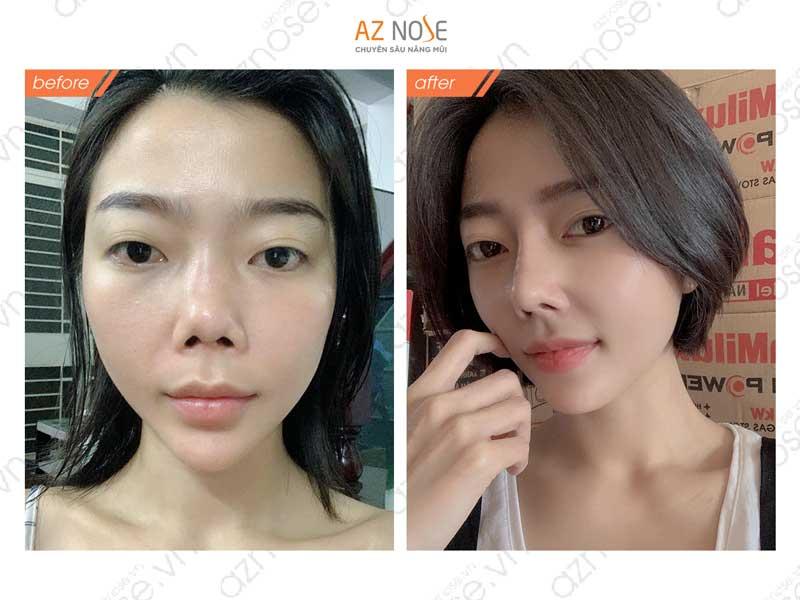 Sụn Surgiform thường ứng dụng sửa lại mũi hỏng vì hạn chế mỏng da