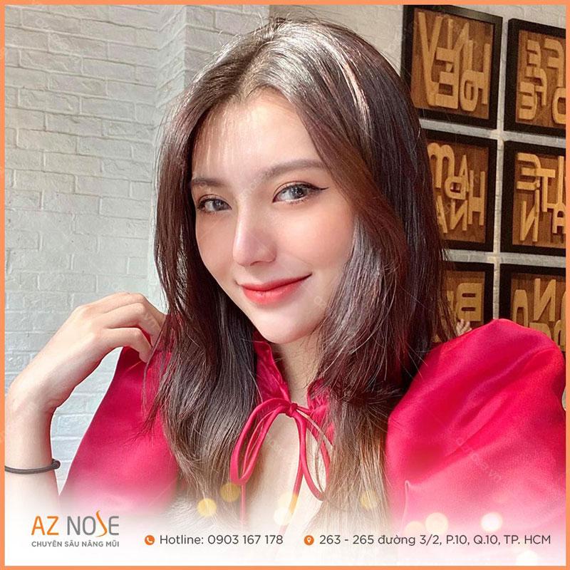 Cô con gái N.K với dáng mũi Sline cao sau 1 năm nâng mũi tại AZ NOSE.