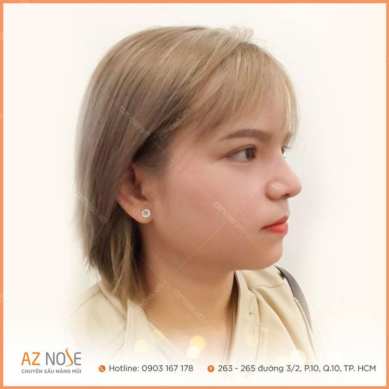 Bạn K.M và dáng mũi Sline cao giúp gương mặt sắc nét hơn.