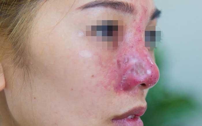 Mũi bị biến chứng buộc phải tiêm tan filler