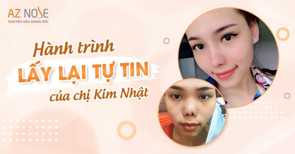 Hành trình lấy lại tự tin của chị Kim Nhật